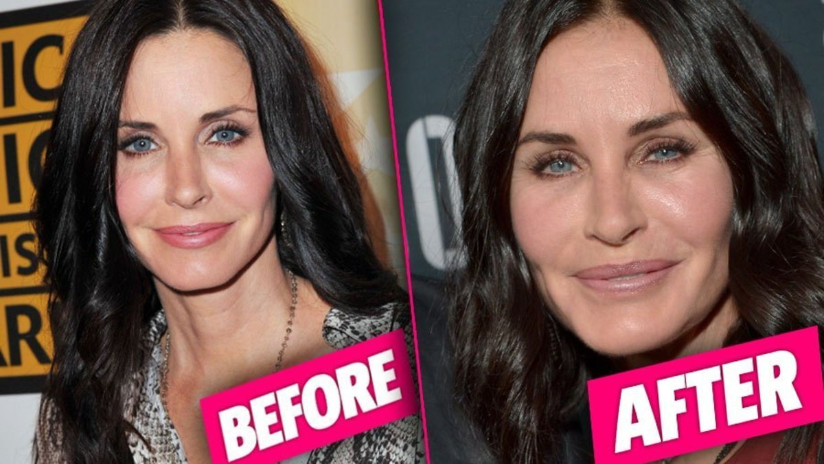 Courtney-Cox-Plastic-Surgery-pp-3