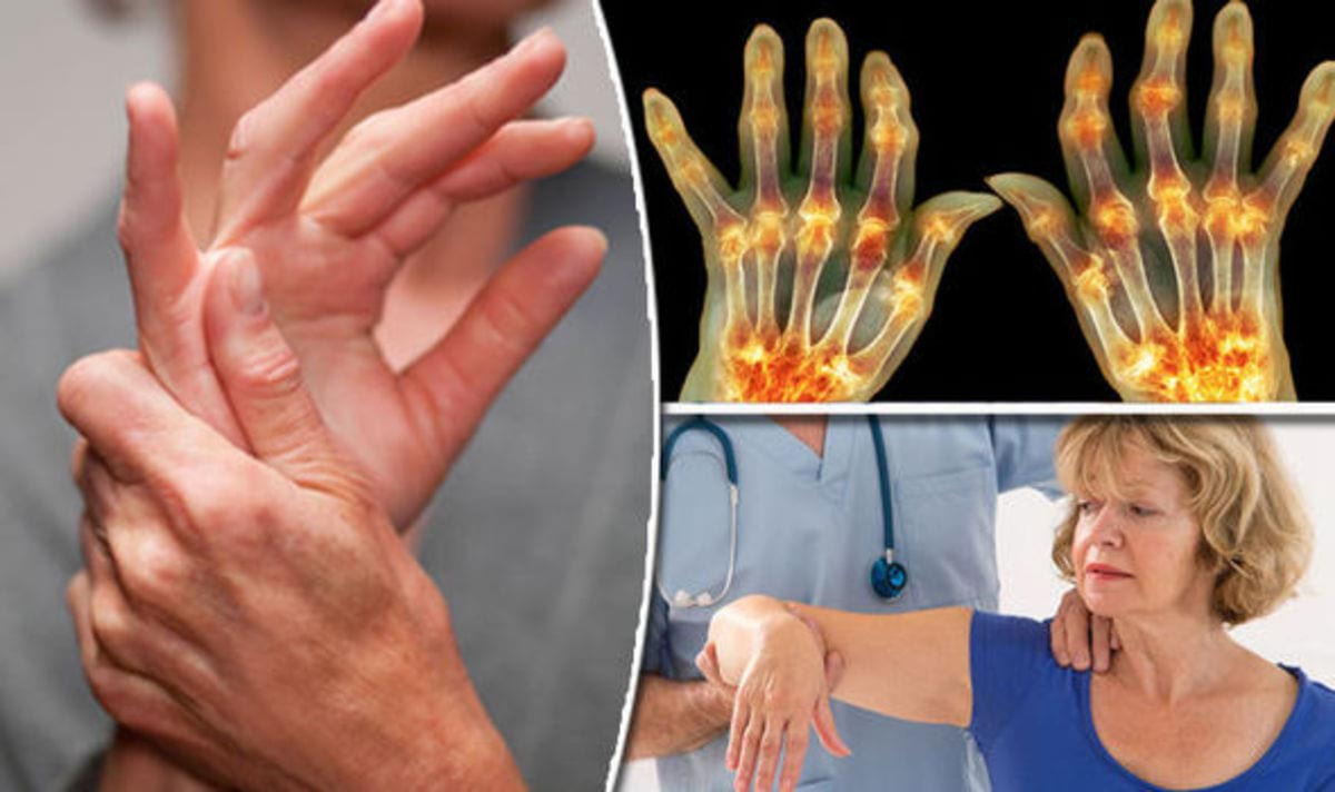 Arthritis-cure-Painful-symptoms-of-condition-could-be-eased-by-following-fasting-diet-732999