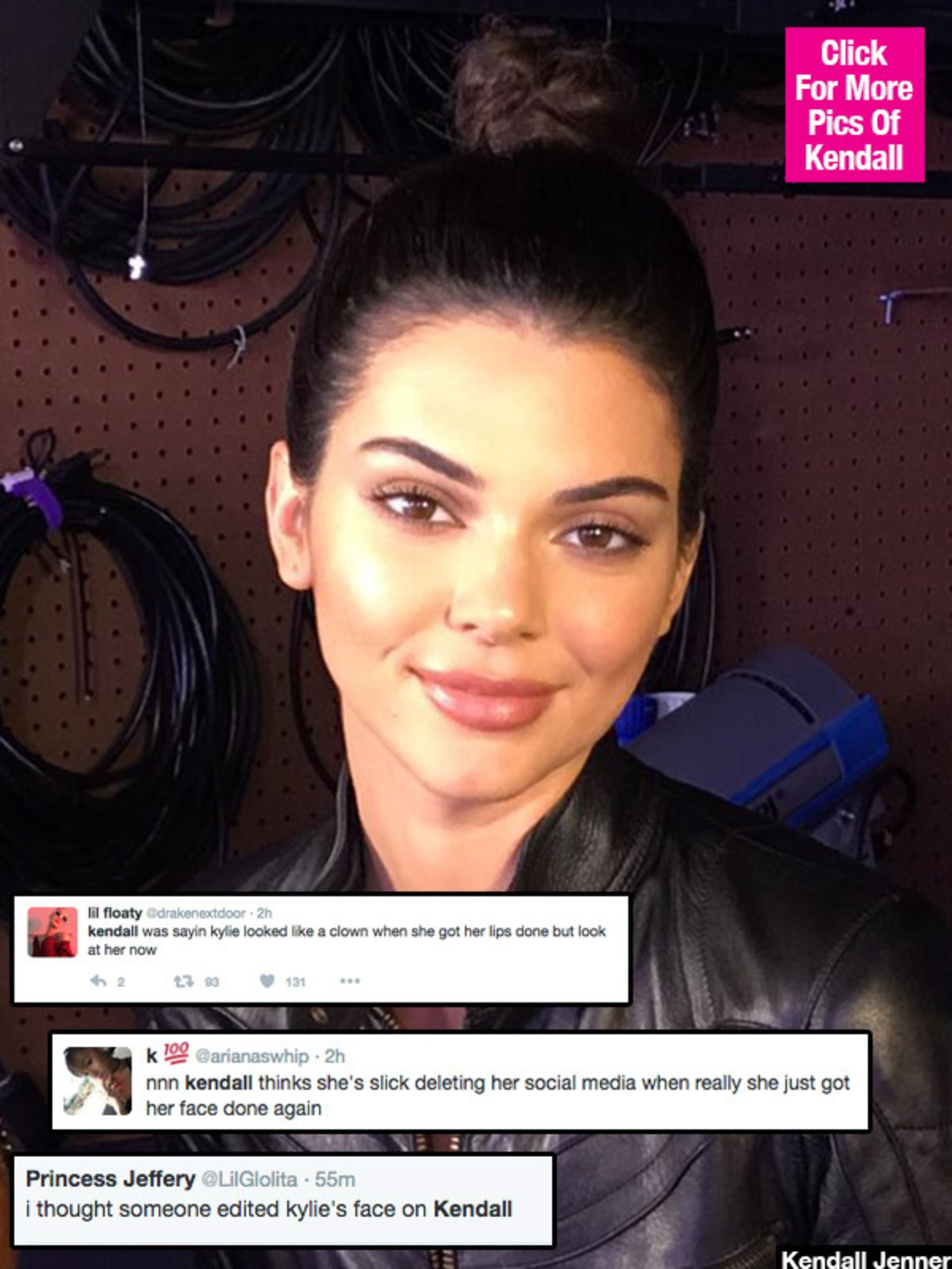 kendall-jenner-lip-injections-after-leaving-instagram-lead